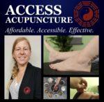 Access Acupuncture
